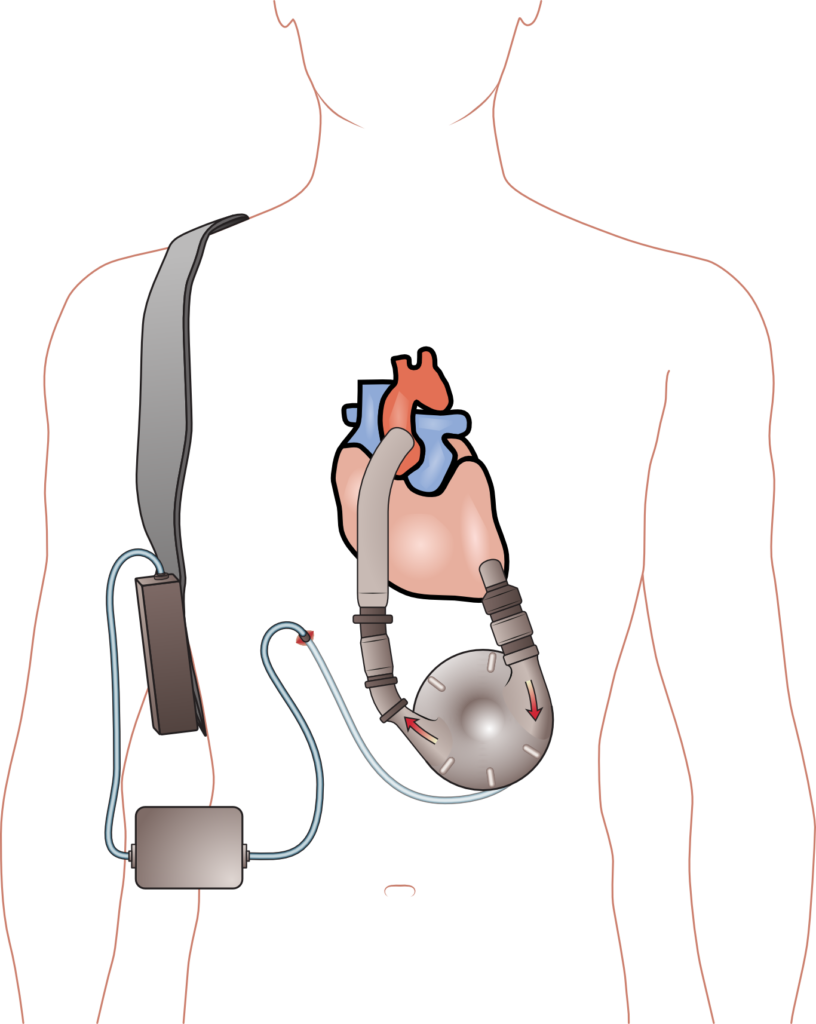 The LVAD device Will is having installed.
